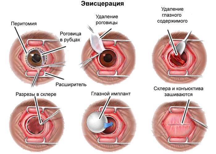 Эвисцерация глазного яблока - лечение глаз
