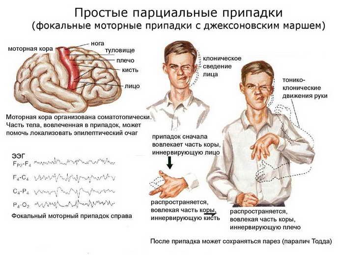 Ксантопсия - что это, причины и лечение