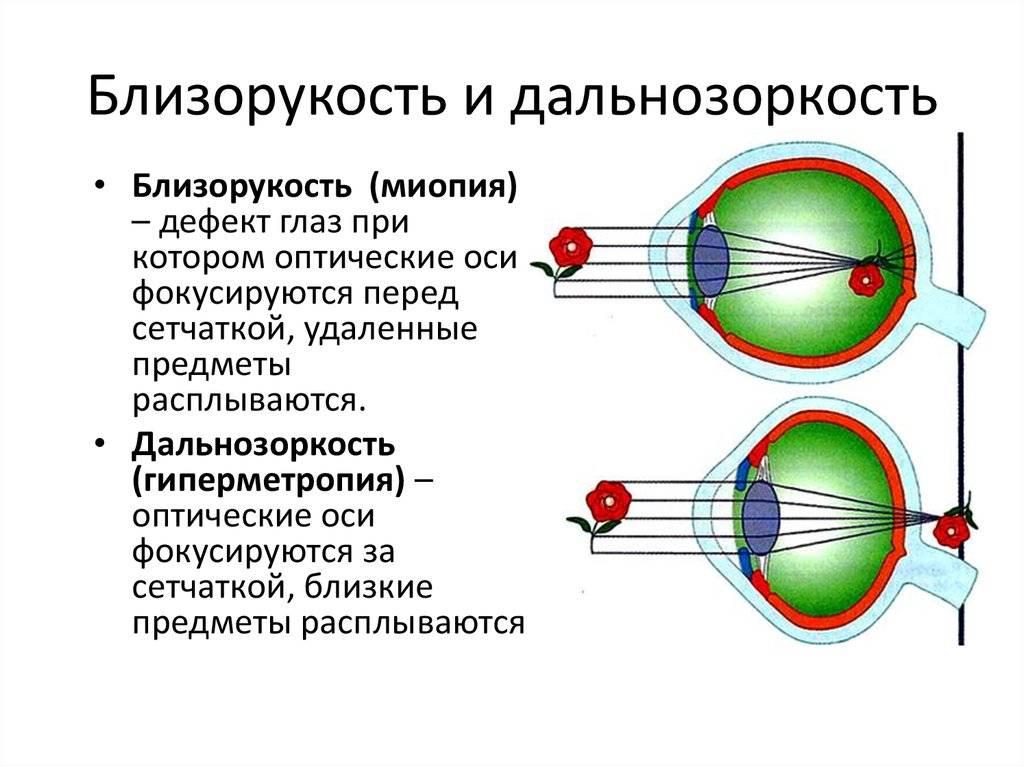 Близорукость и дальнозоркость - что это, отличия