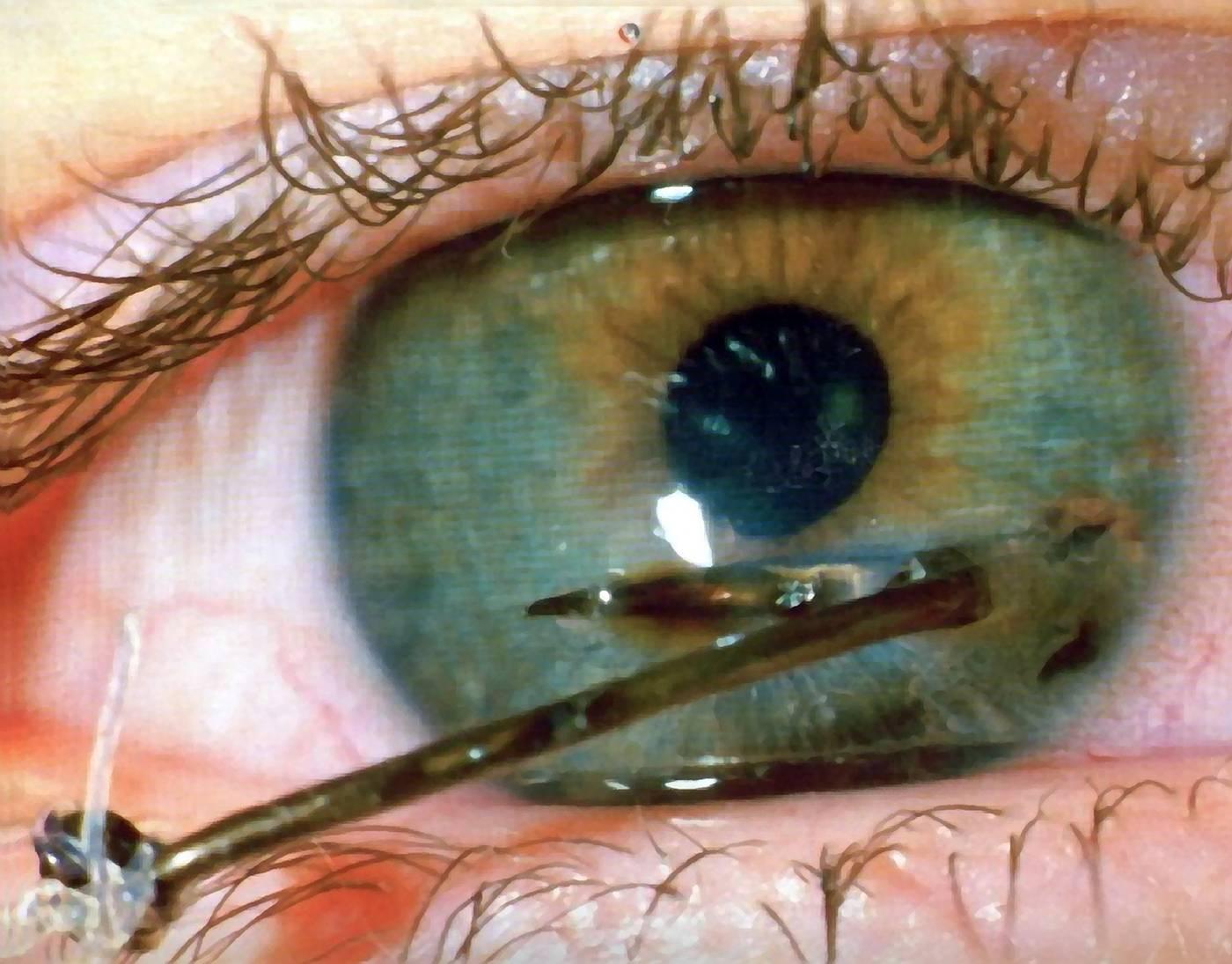 Как избавиться от ощущения инородного предмета в глазу при ношении линз