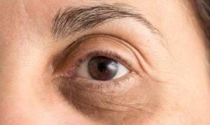 Патологические и непатологические причины запавших глаз