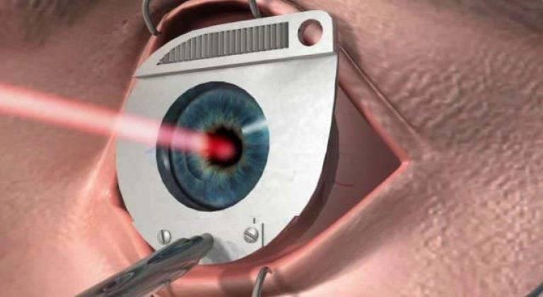 Падает зрение после лазерной коррекции, может ли оно ухудшиться, сильно упасть, что делать при ухудшении, чтобы не упало