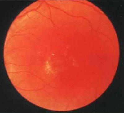 7 разновидностей периферической дистрофии сетчатки: причины и симптомы. как избежать слепоты?