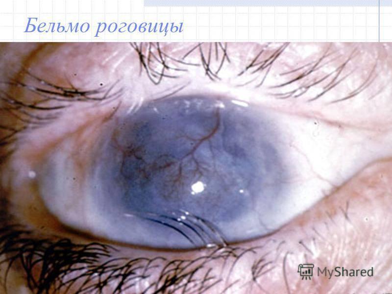 """Заболевания роговицы глаза: причины, симптомы, лечение - """"здоровое око"""""""