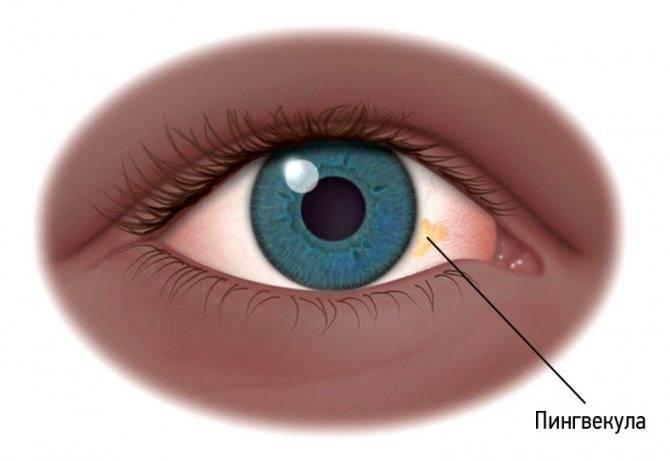 Пузырек на глазном яблоке: причины и лечение