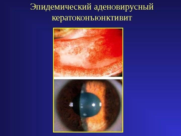 Кератоконъюнктивит: симптомы и лечение острого воспаления у взрослых и детей