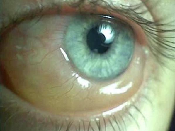 Пелена перед глазами: причины появления у человека белой, когда расплывчатое зрение у женщин, лечение каплями