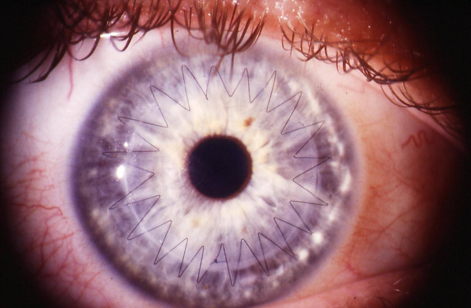 Трансплантация роговицы | офтальмологический центр ophthalmica