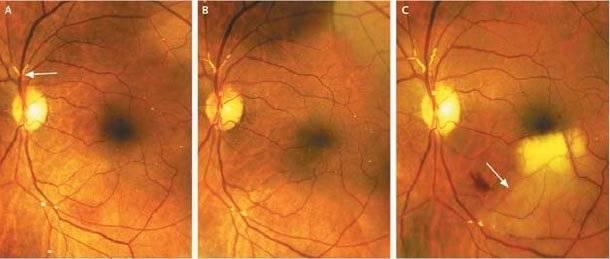 Ангиопатия сетчатки глаза (обоих глаз) у новорожденного ребенка - причины, симптомы и лечение