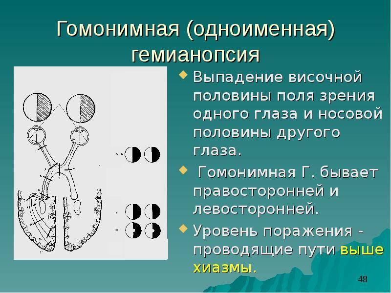 Гемианопсия - гомонимная, битемпоральная, квадрантная