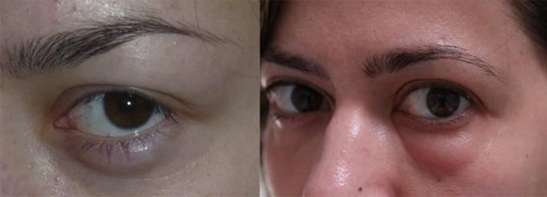 Мешки под глазами у мужчин: 7 причин, а также способы устранения