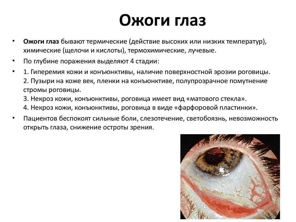 Что делать если в глаз попал хлор - онлайн врач