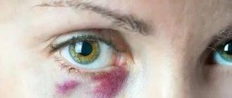 Почему лопнул сосуд под глазом и образовался синяк