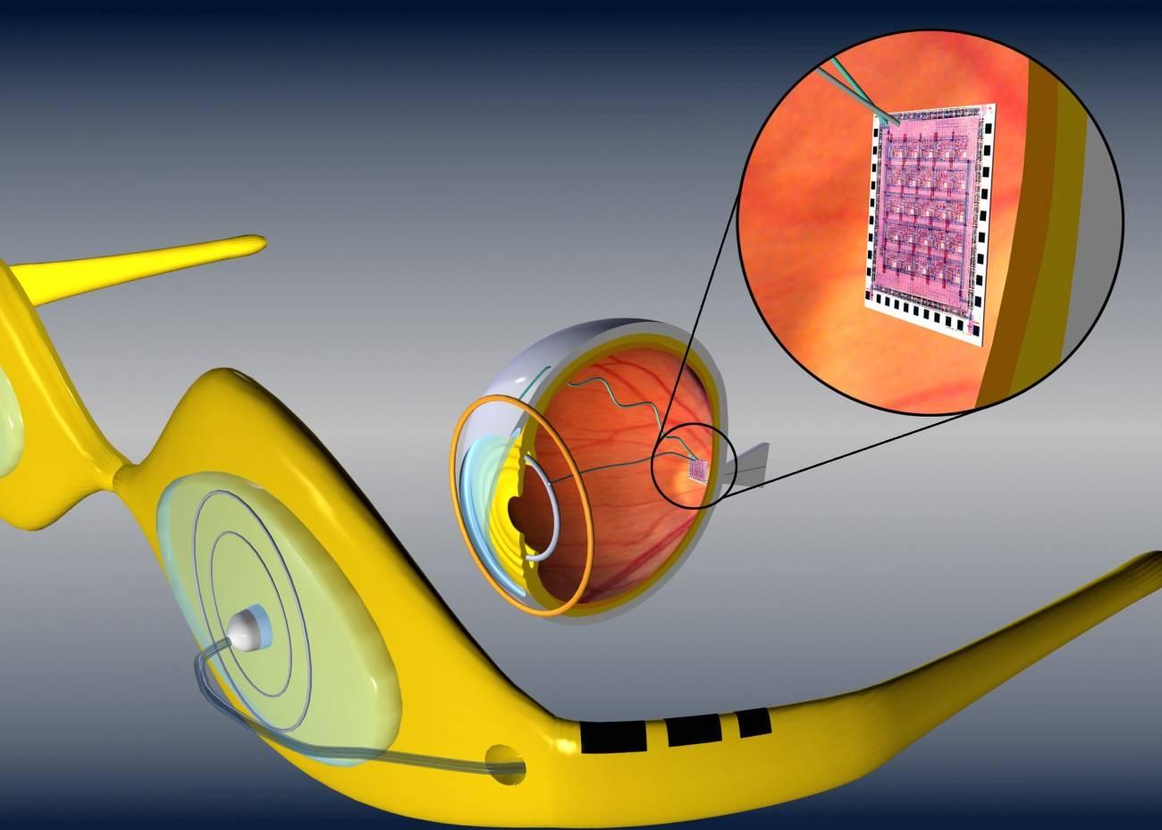 Бионические глаза: особенности имплантации, постоперативный период
