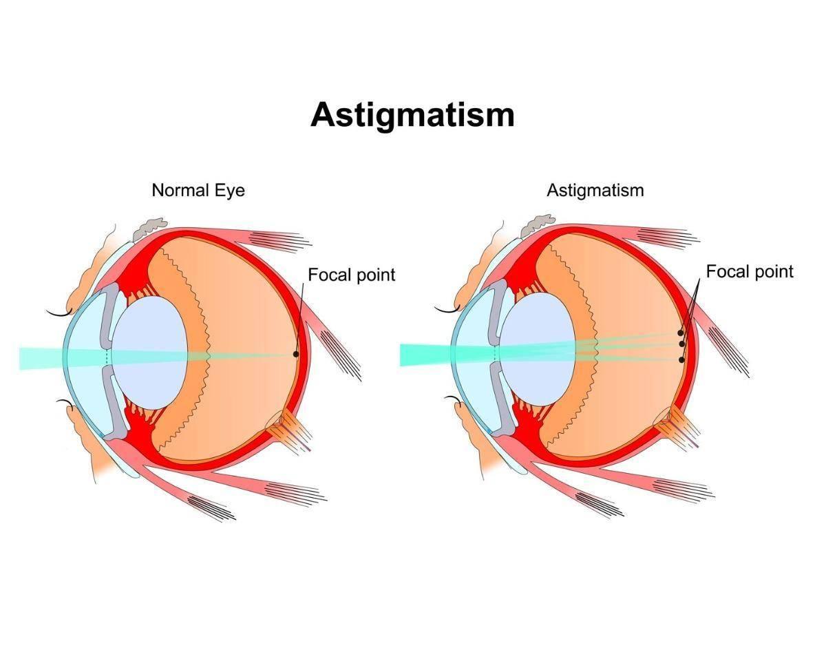 Правда или миф: лечение астигматизма у взрослых в домашних условиях
