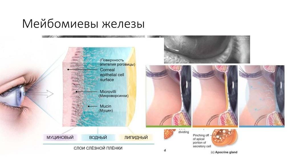 Мейбомит (нижнего и верхнего века): лечение (в том числе в домашних условиях и с помощью народных средств), симптомы, виды (острый и хронический)