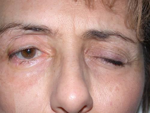 Диагностика и лечение синдрома верхней глазничной щели