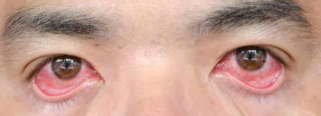 Грибковое поражение глаз