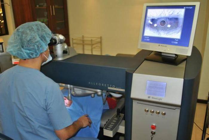 Эксимерный лазер | офтальмологический центр ophthalmica