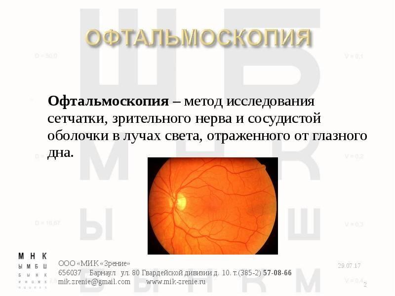 Методика проведения офтальмоскопии