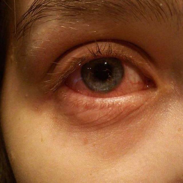 Астенопия: симптомы болезни и лечение