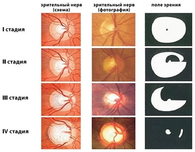 Отек зрительного нерва – причины, симптомы и лечение отека