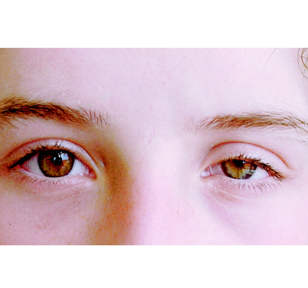 Один глаз стал меньше другого - причины и лечение