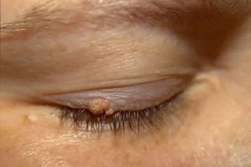 Нарост на веке глаза у человека: способы лечения и удаления oculistic.ru нарост на веке глаза у человека: способы лечения и удаления