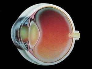 Вторичная катаракта после замены хрусталика: причина и симптомы, повторная с искусственным, осложнения удаления