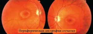 Ретинопатия недоношенных (рн) - описание, причины, симптомы (признаки), лечение.