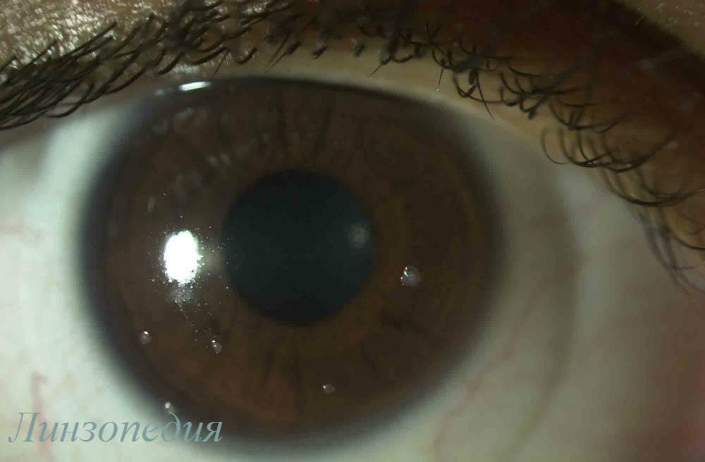Как снять линзы с глаз первый раз: инструкция для новичков по использованию контактной оптики