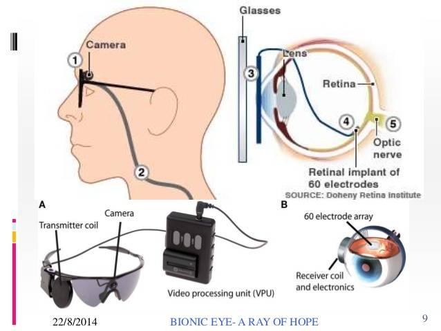 Бионический глаз – искусственная зрительная система :: syl.ru