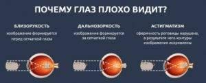 Один глаз видит хуже другого: как исправить состояние, что делать, причины, симптомы, профилактика