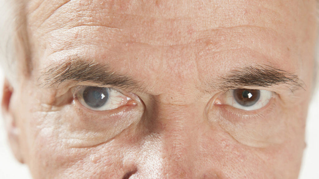Что такое диплопия: причины развития и возможные способы лечения