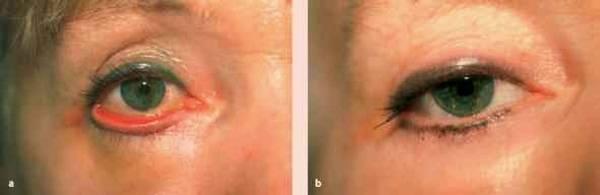 Выворот нижнего века глаза (эктропион) и его эффективное лечение (операция блефаропластики) - moscoweyes.ru
