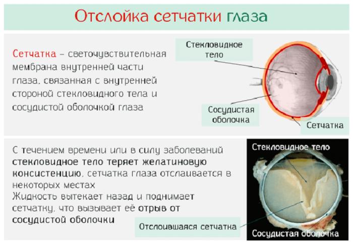 Отслойка сетчатки - симптомы, методы лечения, профилактика