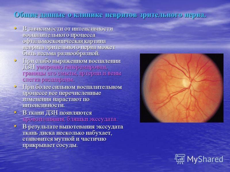 Особенности и причины неврита зрительного нерва