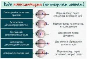 """Гиперметропический астигматизм у детей: диагностика, лечение - """"здоровое око"""""""