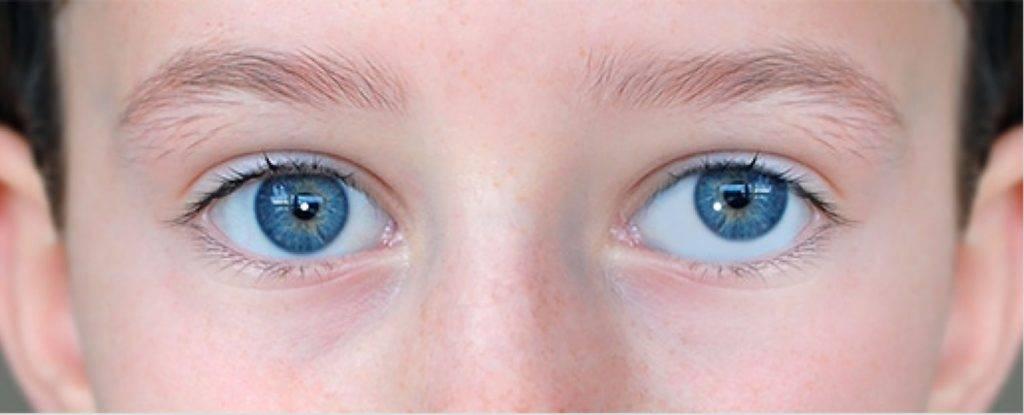 Нистагм: что это такое, причины, симптомы, виды, диагностика, лечение у взрослых, детей