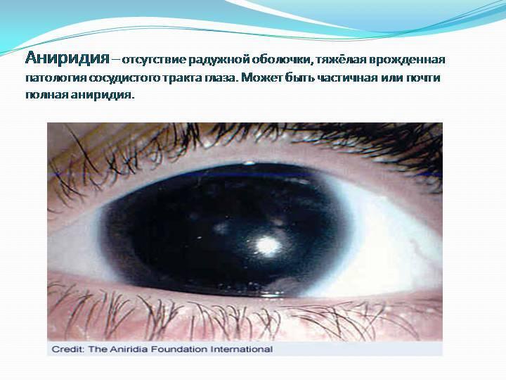 Аниридия: описание, симптомы и лечение аниридии
