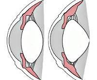 Привычно избыточное напряжение аккомодации: диагноз пина в офтальмологии oculistic.ru привычно избыточное напряжение аккомодации: диагноз пина в офтальмологии