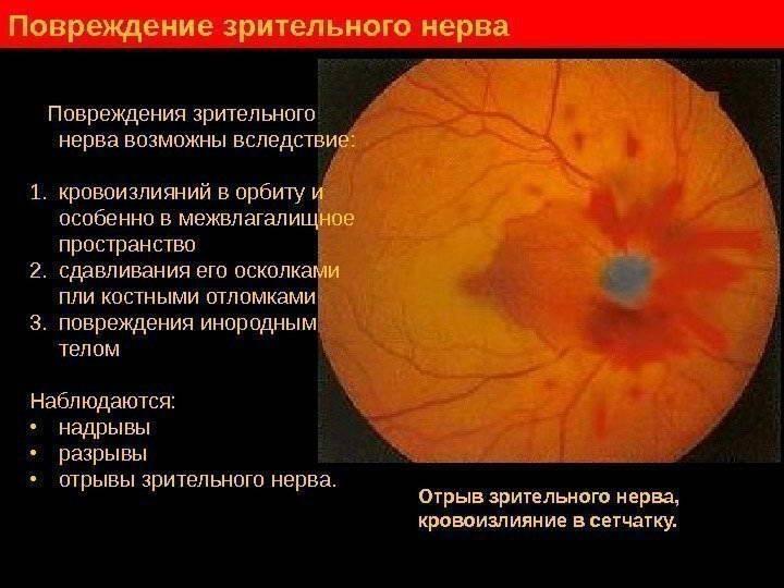 Причины воспаления зрительного нерва