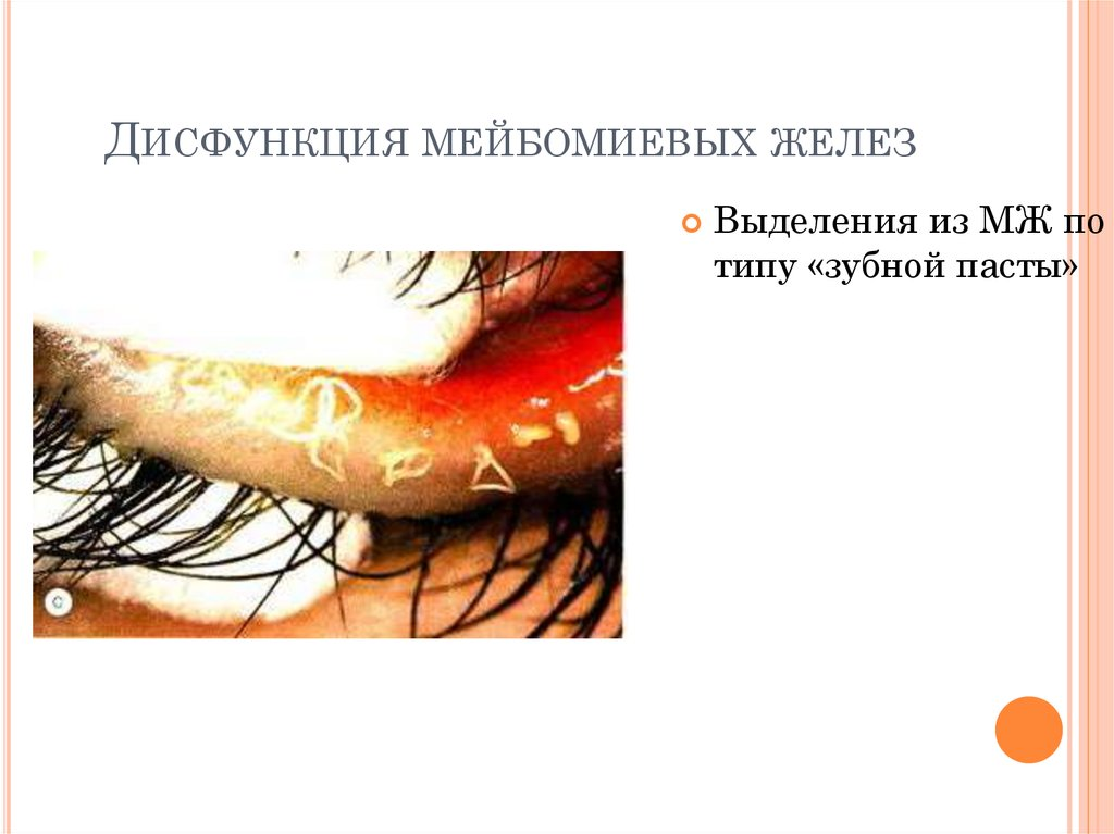 Мейбомиевый блефарит – причины, симптомы и лечение (фото)