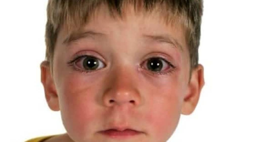 Что делать, если у ребенка покраснел глаз: даем несколько рекомендаций родителям