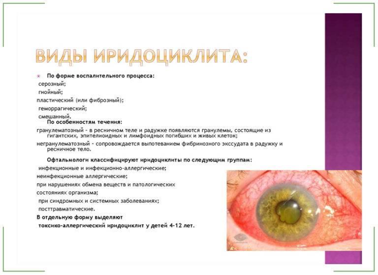 Ирит и иридоциклит - симптомы болезни, профилактика и лечение ирита и иридоциклита, причины заболевания и его диагностика на eurolab