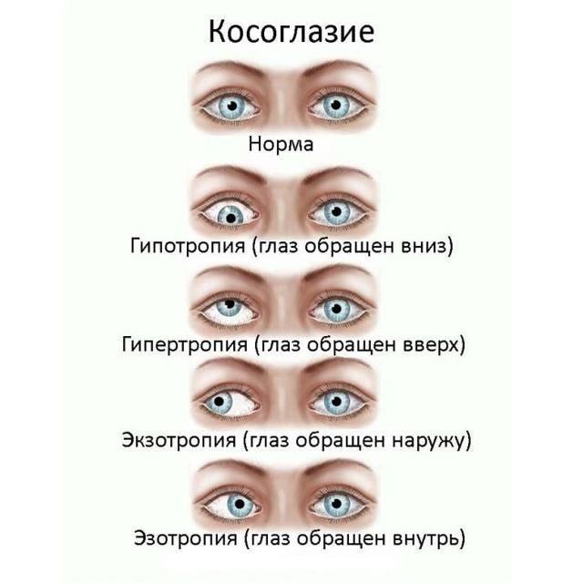 Передается ли астигматизм по наследству: особенности, формы и причины — глаза эксперт