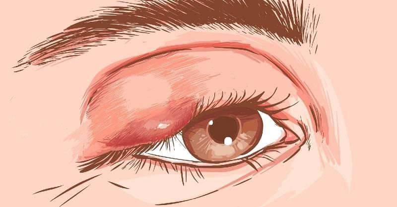 Ячмень на глазу при беременности: причины, влияние на плод, особенности лечения
