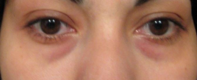 Как быстро снять отеки с глаз при аллергии