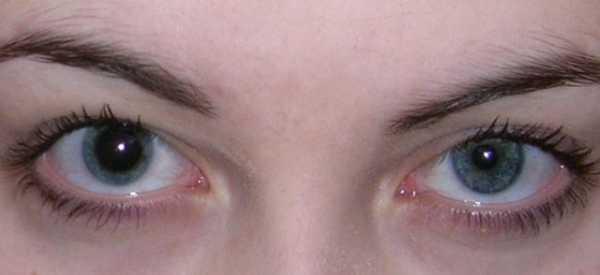 Анизокория: причины возникновения симптома и его устранение