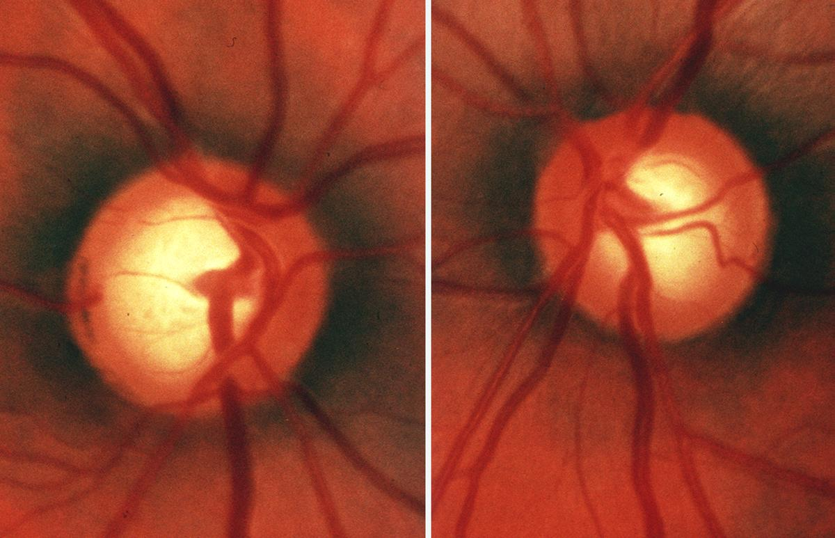 Нейро-офтальмологические последствия чмт. лечение повреждений зрительного нерва и хиазмы
